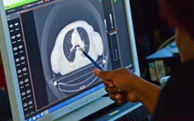 Leucemia e trapianto di midollo: la radioterapia resta imprescindibile.